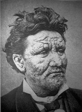 Lepra - rani stadij (foto: Wikipedia)