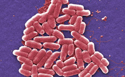 Escherichia coli (foto: CDC)