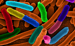 E. coli (foto: Wikimedia Commons)