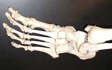 Kosti stopala (foto: Wikimedia Commons)