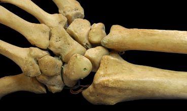 Kosti desne ruke (foto: Wikimedia Commons)